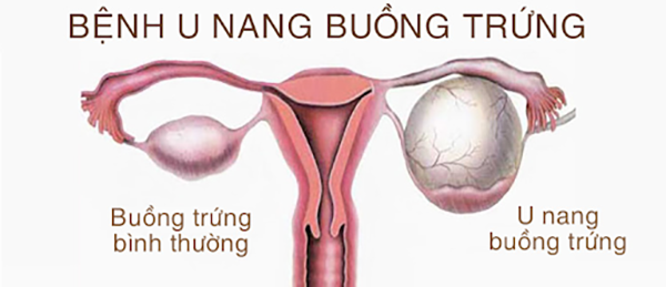 benh-buong-trung