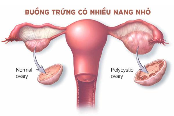 buong-trung-co-bao-nhieu-nang-nho