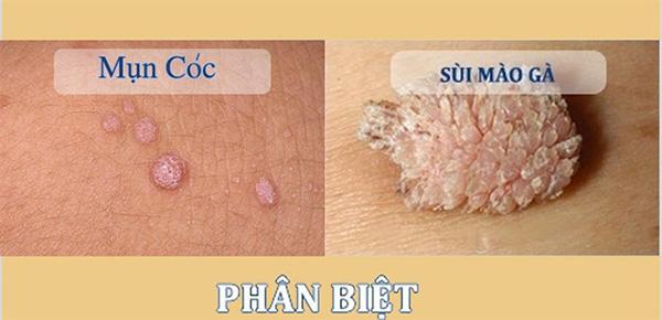 mun-coc-sinh-duc-khac-sui-mao-ga
