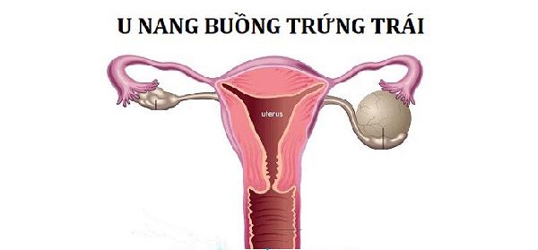benh-u-nang-buong-trung-ben-trai