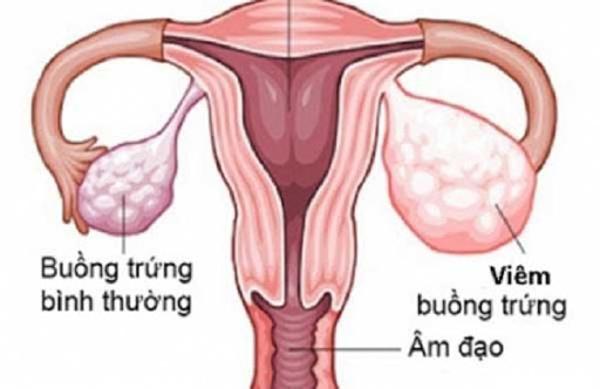 thuoc-dieu-tri-roi-loan-cuong-duong