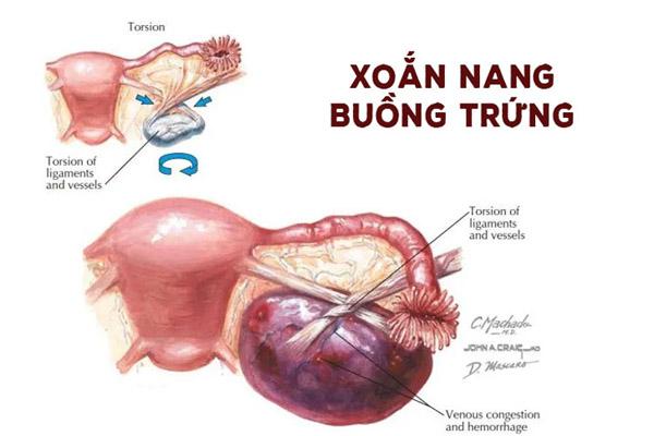 xoan-buong-trung