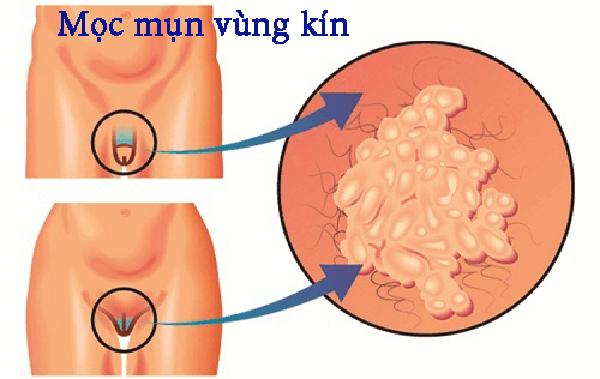 moc-mun-o-bo-phan-sinh-duc-nam