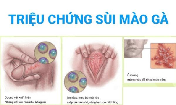 bieu-hien-benh-sui-mao-ga