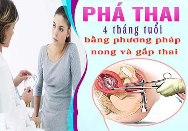 chi-phi-pha-thai-4-thang-tuoi