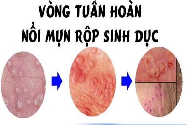 mun-rop-sinh-duc-nam